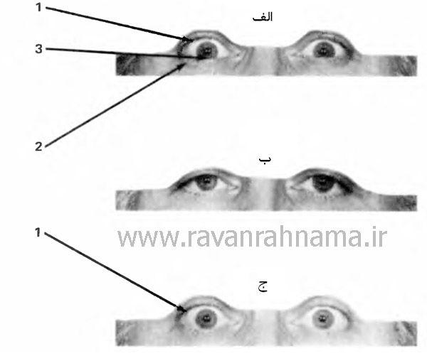 حرکات چشم در ترس