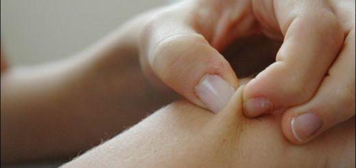 اختلال پوست کندن