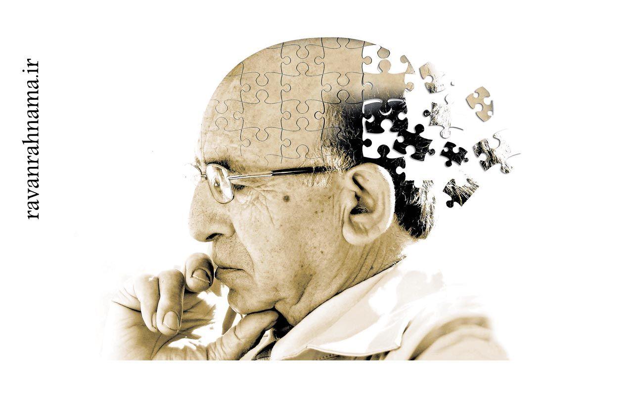 زوال عقل چیست